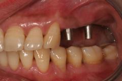 Foto_Implantatbro_2