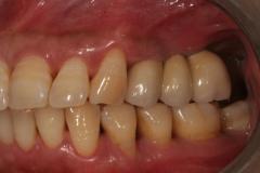 Foto_Implantatbro_3