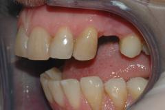 Implantat_klinisk_fotografi_1