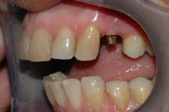 Implantat_klinisk_fotografi_2
