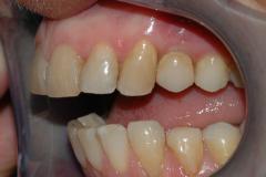 Implantat_klinisk_fotografi_3