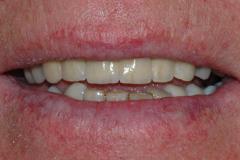 Implantat_klinisk_fotografi_5