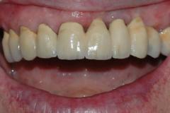 Implantat_klinisk_fotografi_6