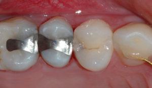 Forberedelser til fylling av tann.