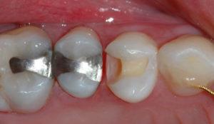 Klartgjort tann for fylling.
