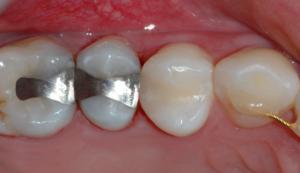 Bilde av tann etter fylling av hull er utført.