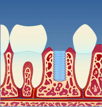 Implantat_illustrasjon_2