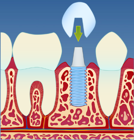 Implantat_illustrasjon_3