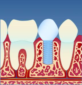 Implantat_illustrasjon_5
