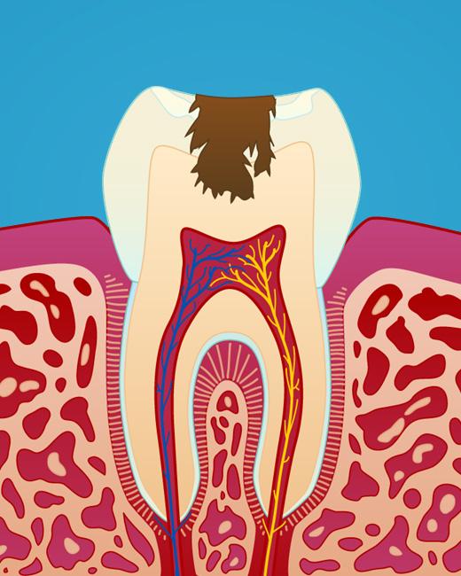 Dypt hull i tann