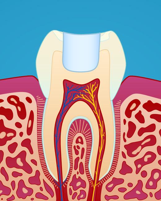 Hvordan fylling av hull i tann fungerer