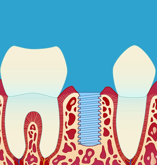 Implantat blir satt inn, og distansen som skal virke som feste for kronen er montert