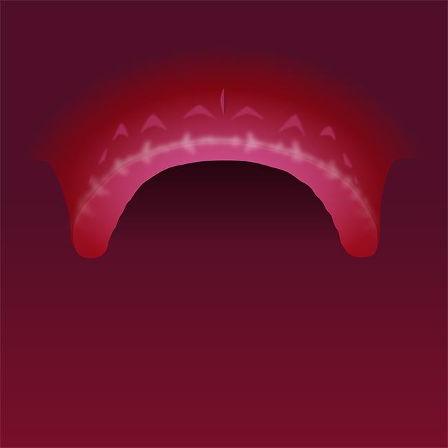 Tennene mangler i kjeven