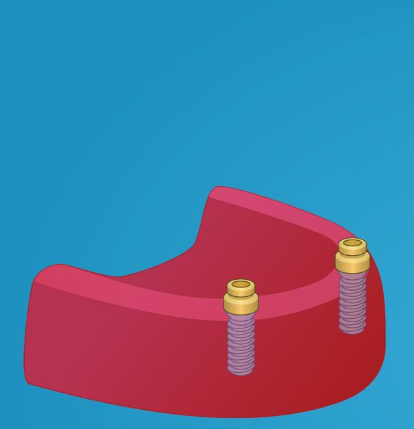Innsetting av to implantater og locatorfester som fungerer som trykknappfester for protesen